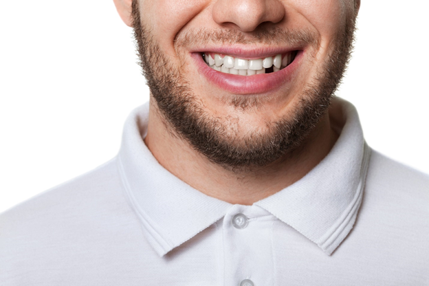 A look at the factors driving the trend towards textbook perfect smiles