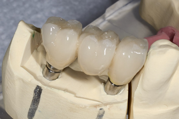 Eager to have dental implants? What you need to know before the fittings